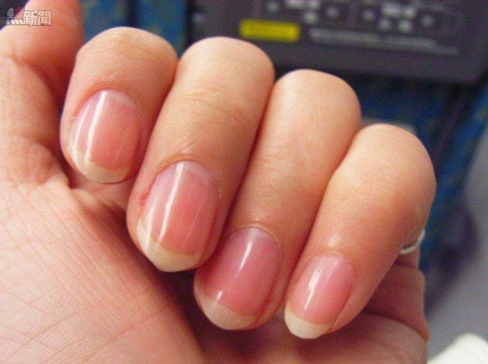 Nail uneven pattern may have hidden health Murder_health-new
